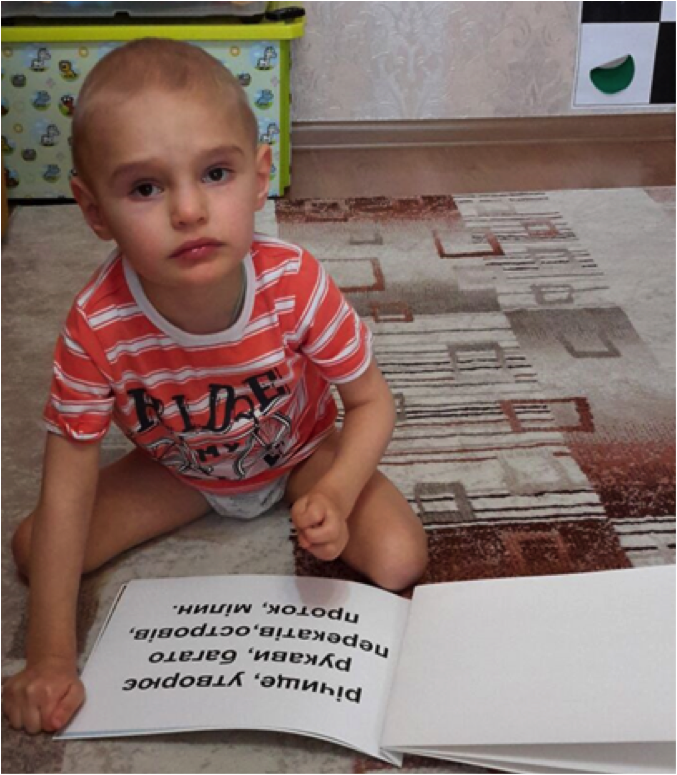 brain-injury-microcephaly-baby-time-loves-learning