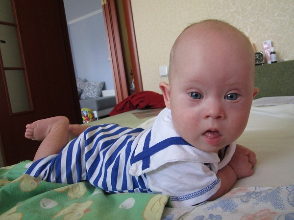 Trisomy-21 Success Story Egor
