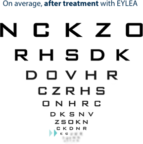 Letters gained on eye chart after EYLEA anti-VEGF measured at 1 and 2 years.