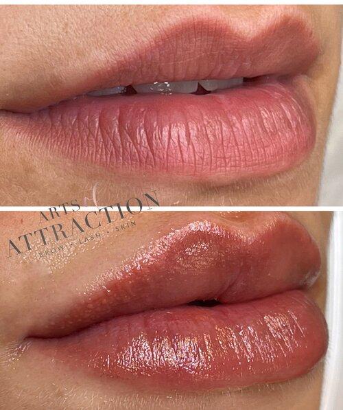 Lip Blushing & Lip Treatment Services
