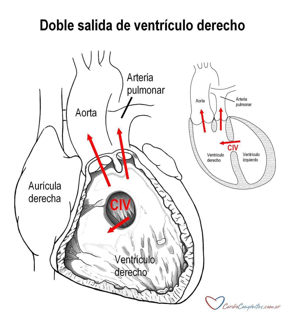 DSVD-anatomia