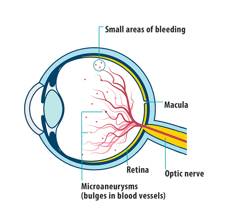 Picture of effects of diabetic retinopathy on the eye, showing small areas of bleeding, macula, retina,optic nerve, and microaneurysms (bulges in blood vessels).