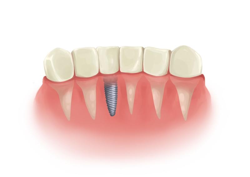 Dental implant next to atural dentitio