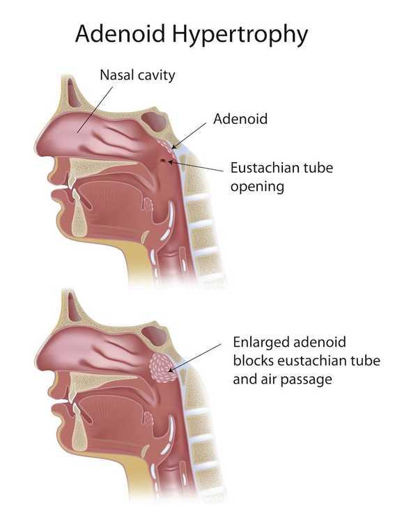 adenoidectomy img2