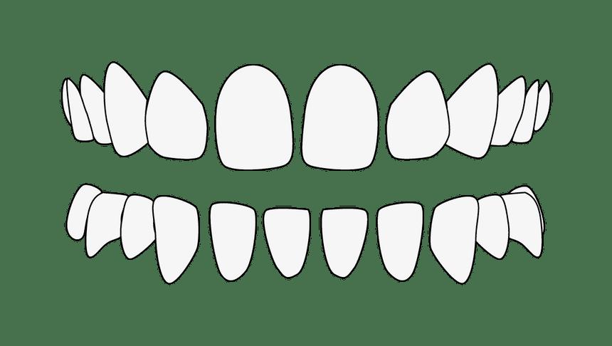 Zahnfehlstellung Lückenstand