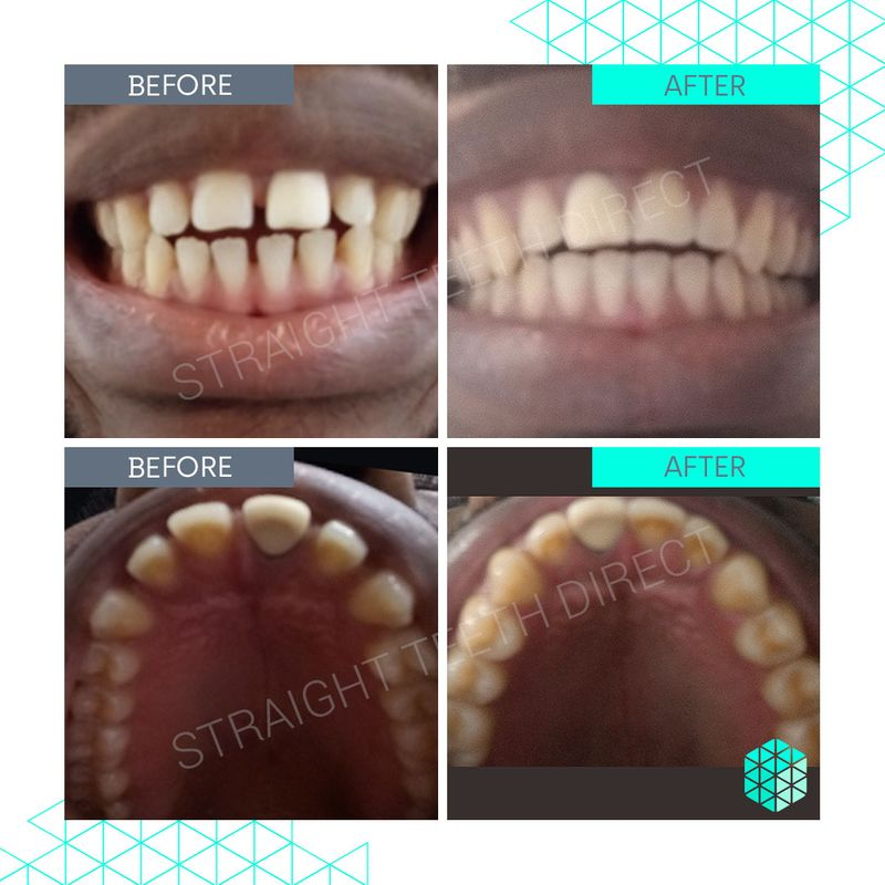 Straight Teeth Direct Review by Joseph