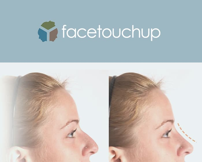 Face Touchup