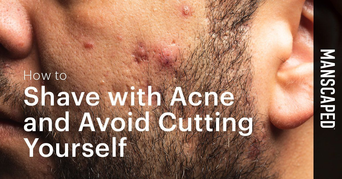 How to Shave With Acne and Avoid Cutting Yourself