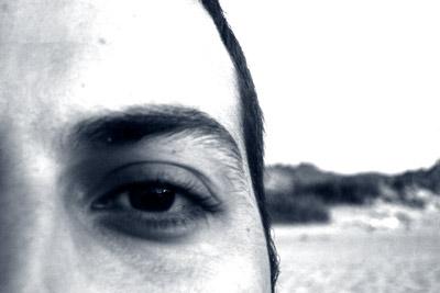 Albert, ojo izquierdo