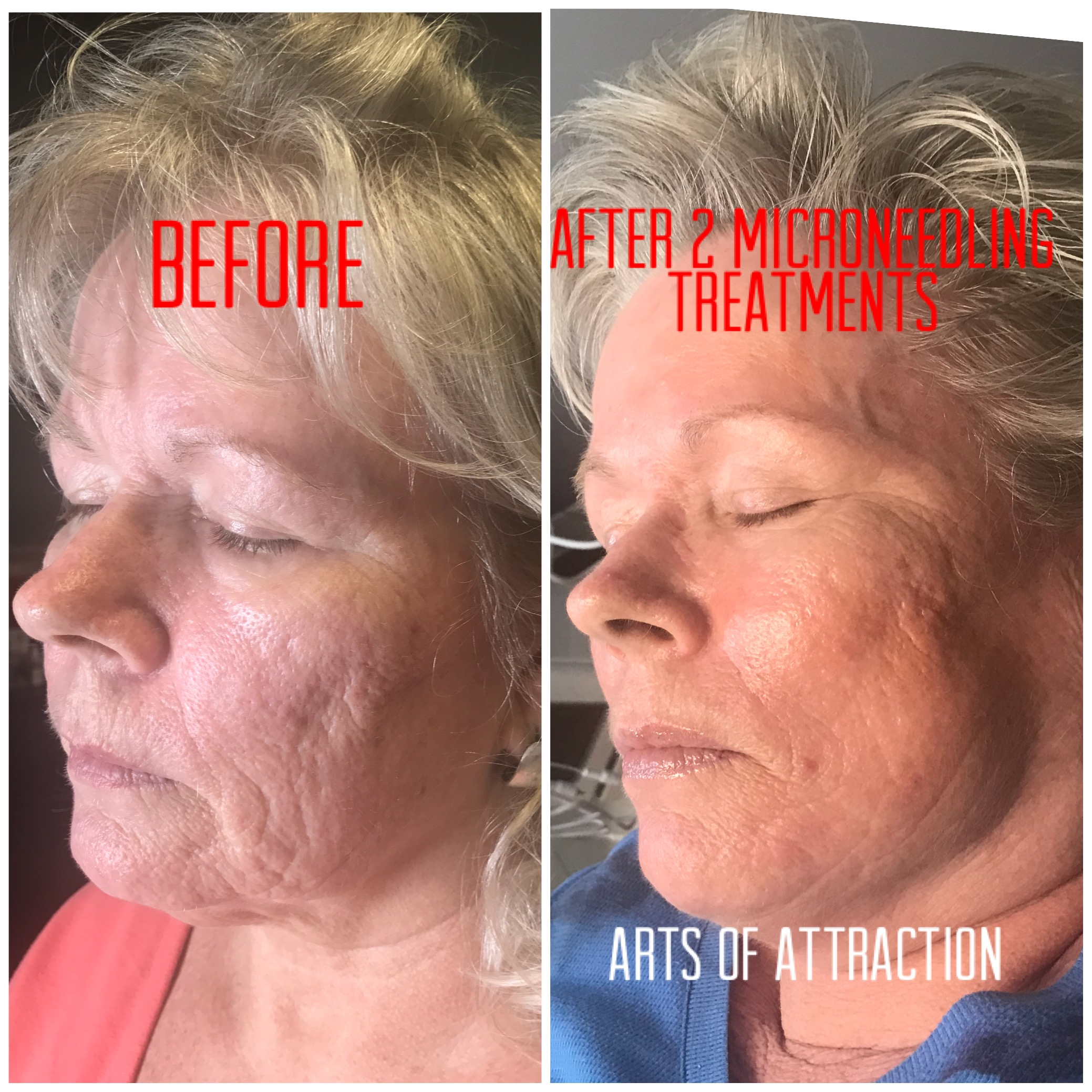 Microneedling - Better than Botox and Fillers