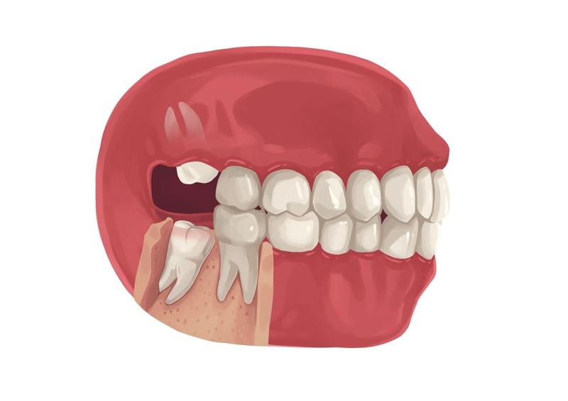 Partially bony impacted wisdom tooth
