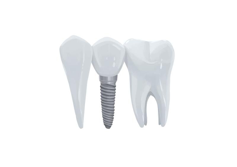 Dental implant between teeth