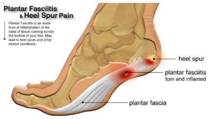 58affb0852 How To Handle Achilles Tendinopathy Achilles tendinopathy is a condition  that causes discomfort, swelling, tightness and weak point of the Achilles  tendon.