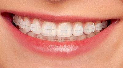 ortodontia ceramica