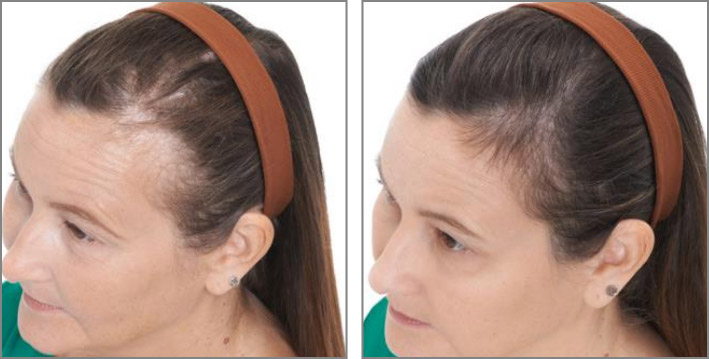 Keranique Hair Regrowth Solution Reviews