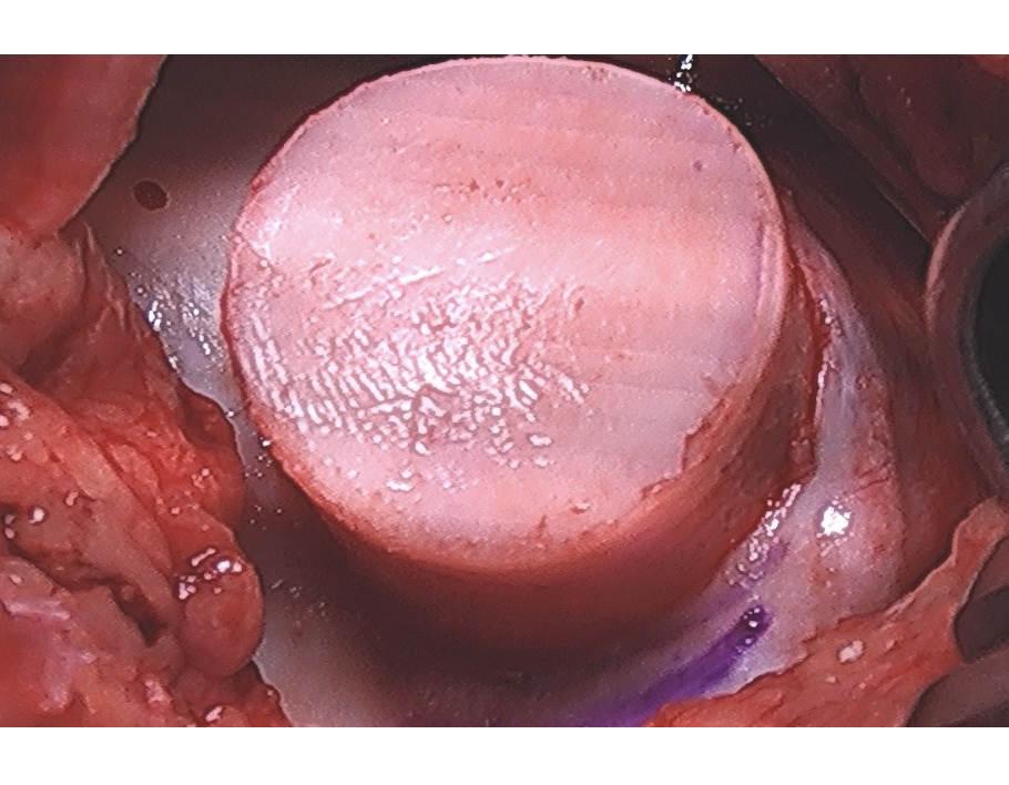 OATs_implantation.JPG