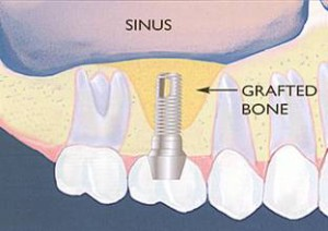 Levantamento seio maxilar 2