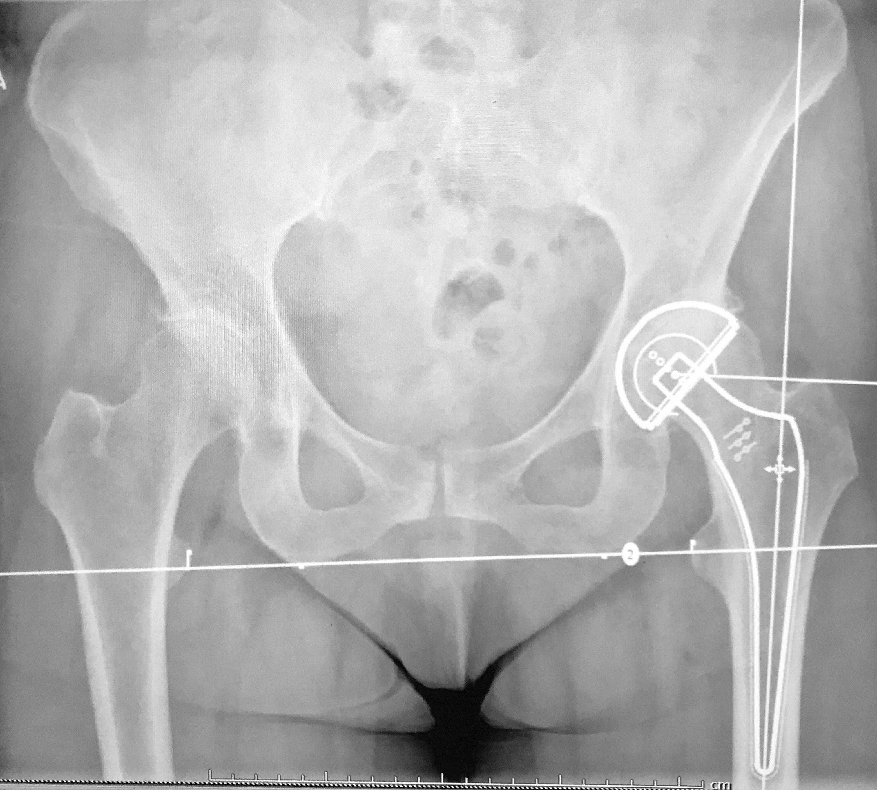 Ακτινογραφία σχετική με Ολική αρθροπλαστική ισχίου.