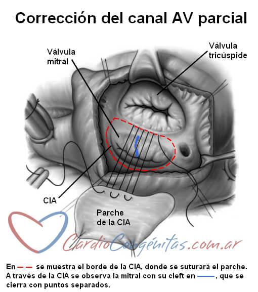Cirugia-canal-parcial