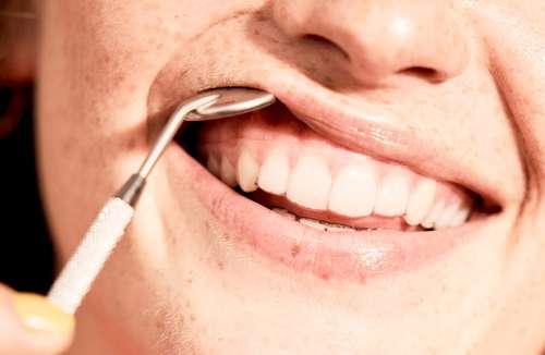 Gerade Zähne mit einer Zahnschiene