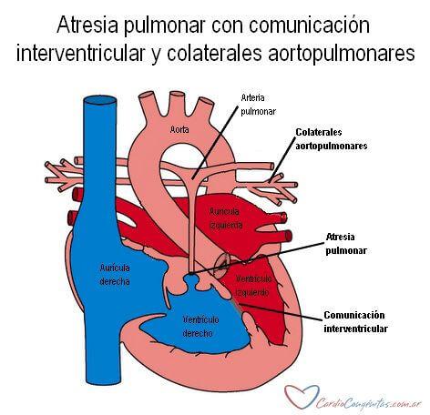 AP-con-CIV-y-colaterales-anatomia