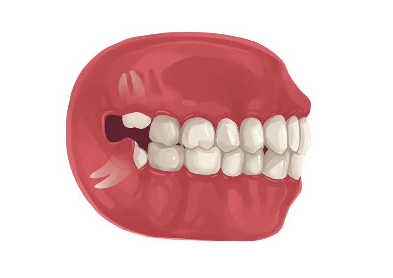 Soft-tissue impacted wisdom tooth