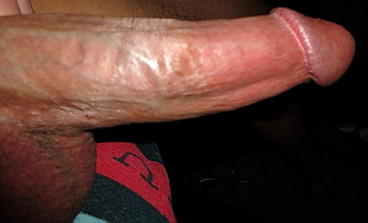 Profile of Dick Shaft Upclose