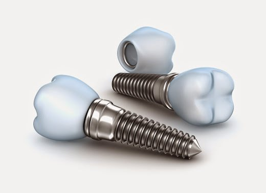 implante implante dor