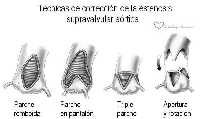 Tecnicas-qcas-est-supravalv-ao