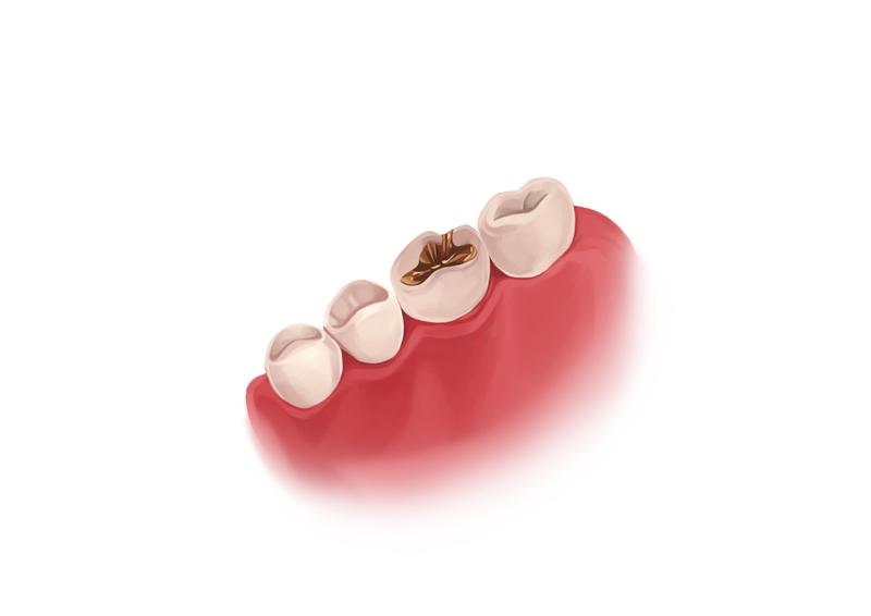 Gold dental filling