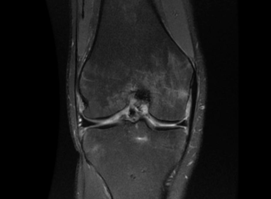 post-op-mri-anatomic-healed-avulsion.png