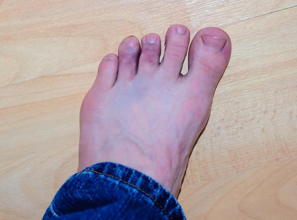 Bruised Toes