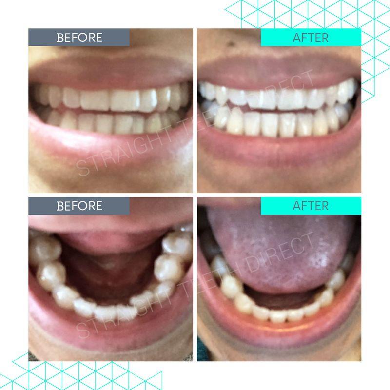 Straight Teeth Direct Review by Tasha