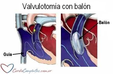 Valvulotomia-con-balon