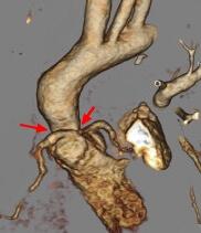 Est-supravalv-ao-RMN
