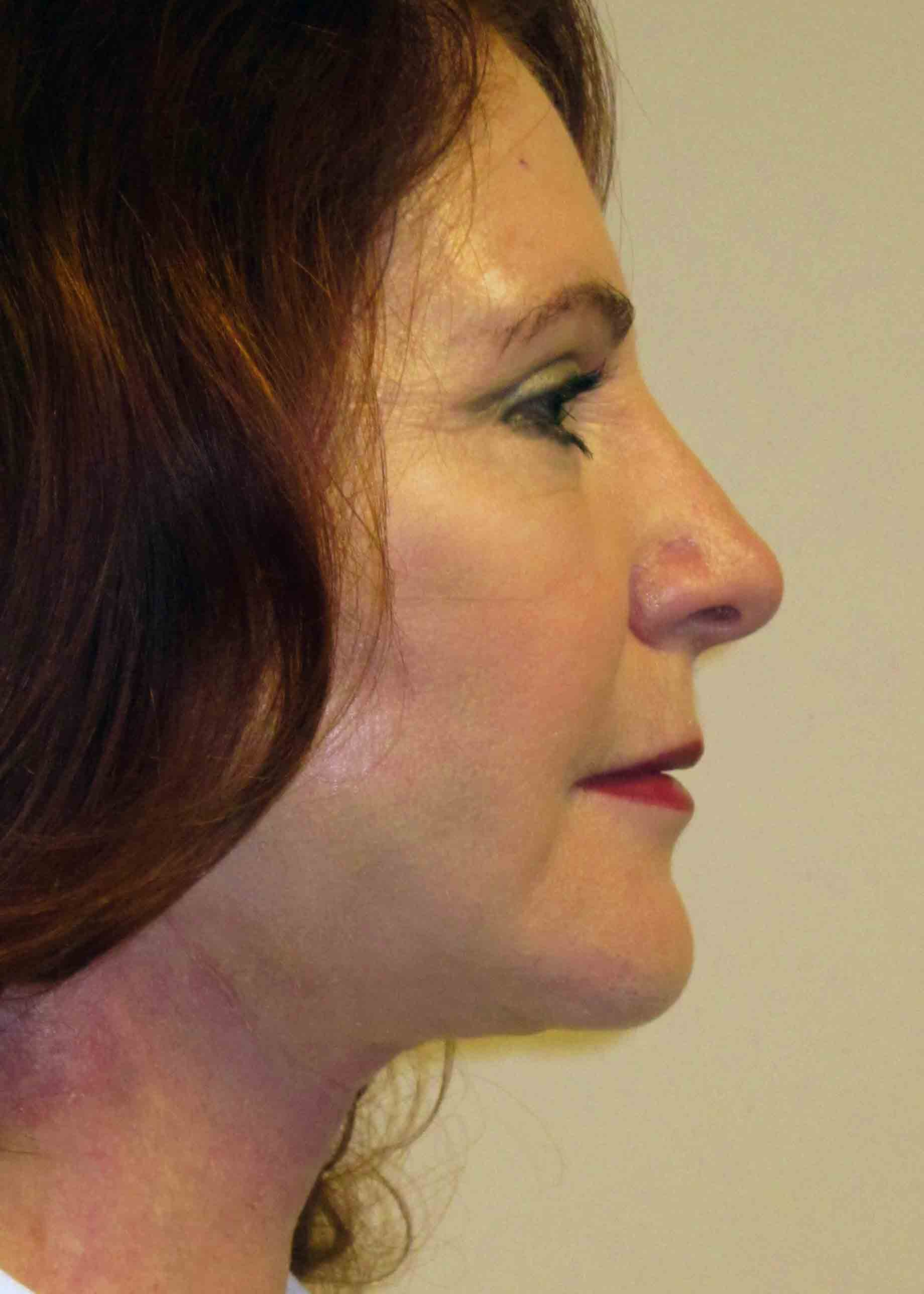 12230-2-post-op-facelift-profile.jpg