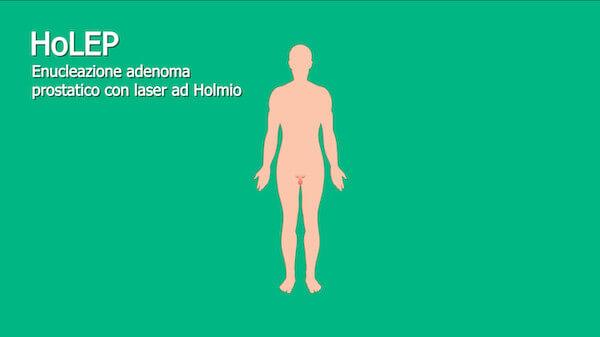 Ipertrofia prostatica: Intervento con laser ad Holmio
