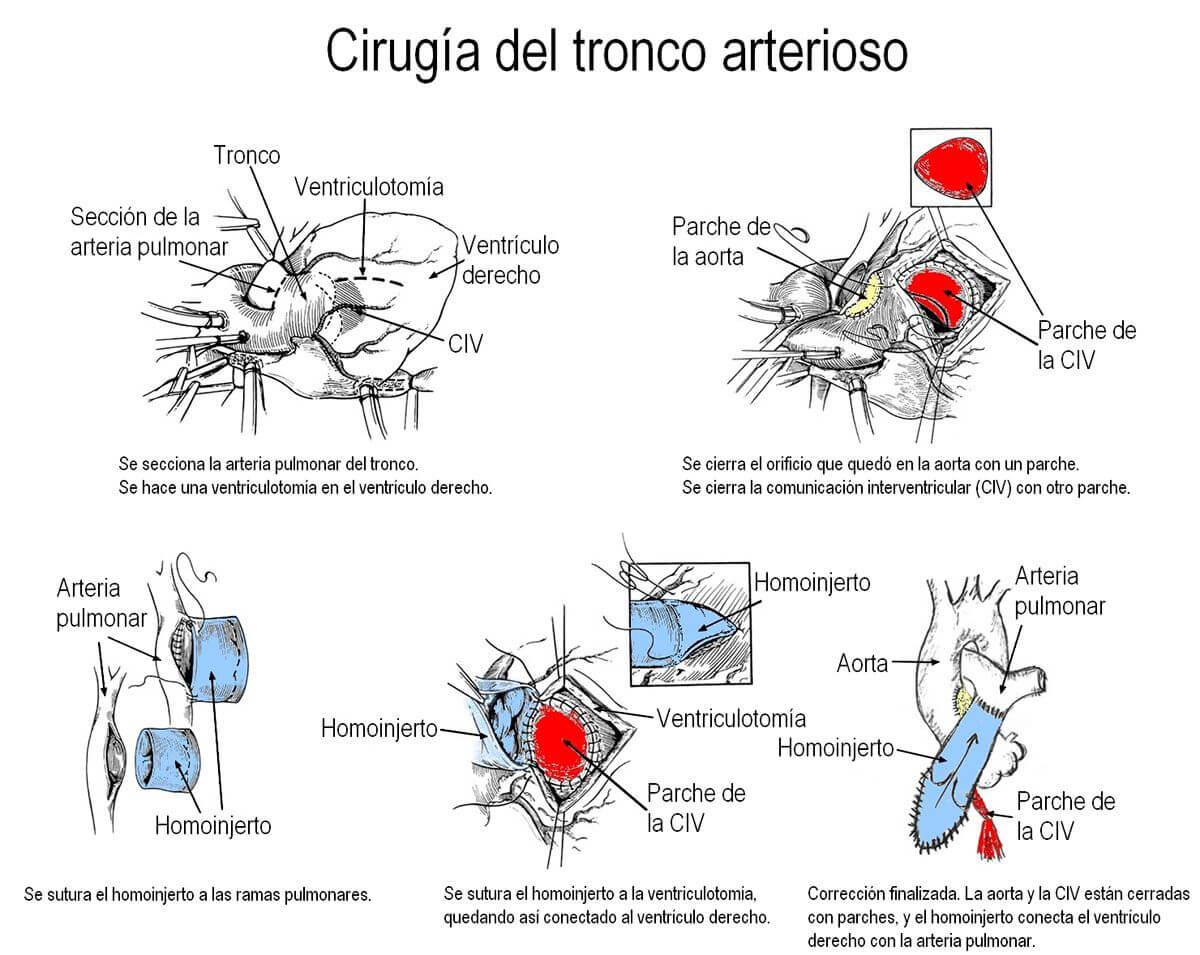 Tronco-cirugia