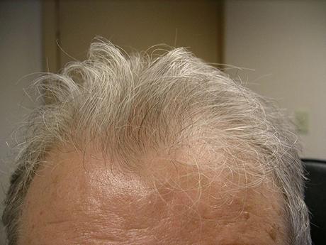 hair transplants fond du lac wi