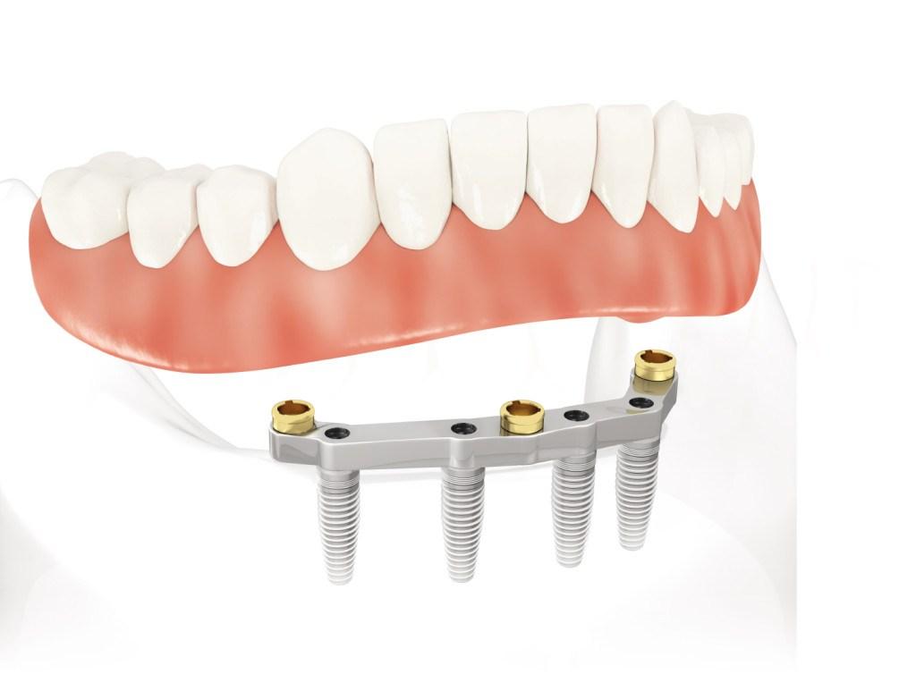 dentadura e implantes