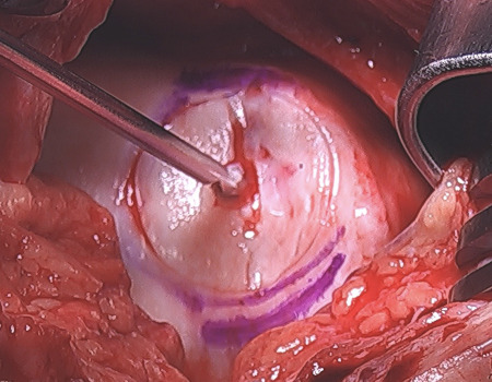Open_view_of_chondral_lesion.JPG