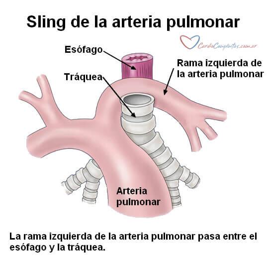 sling-de-la-pulmonar