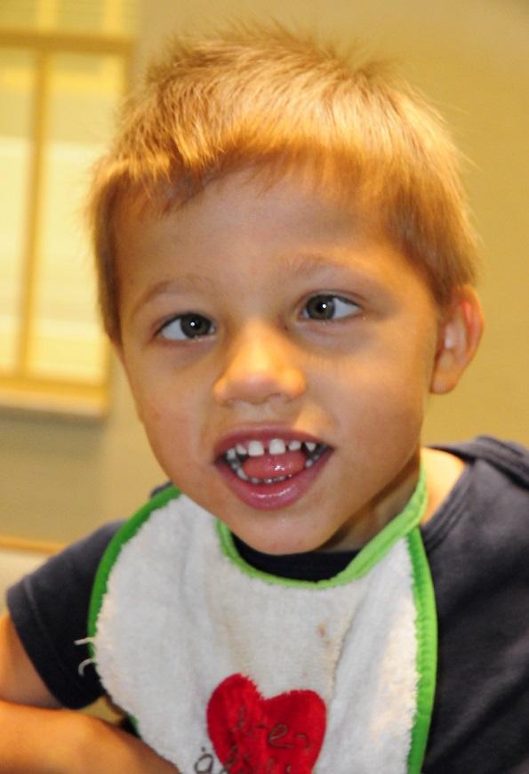 cerebral-palsy-symptoms-melvin-happy-child