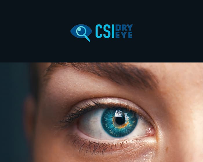 CSI Dryeye
