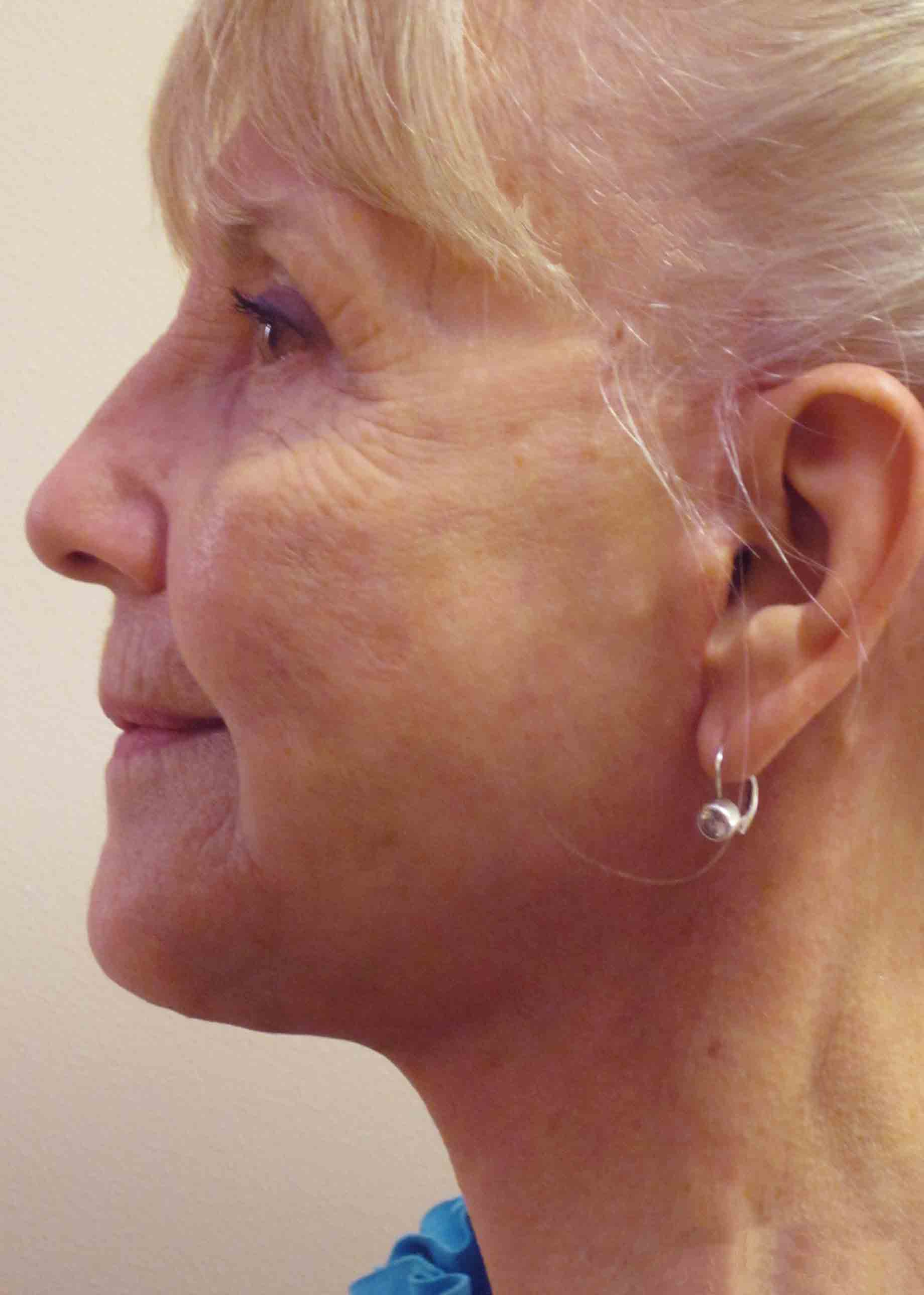 6296-4-post-op-facelift-profile.jpg