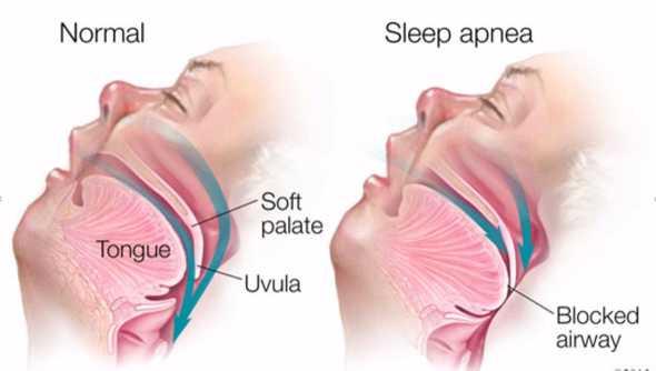snoring-osa sn12
