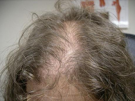 Hair Loss Treatment Sheboygan WI