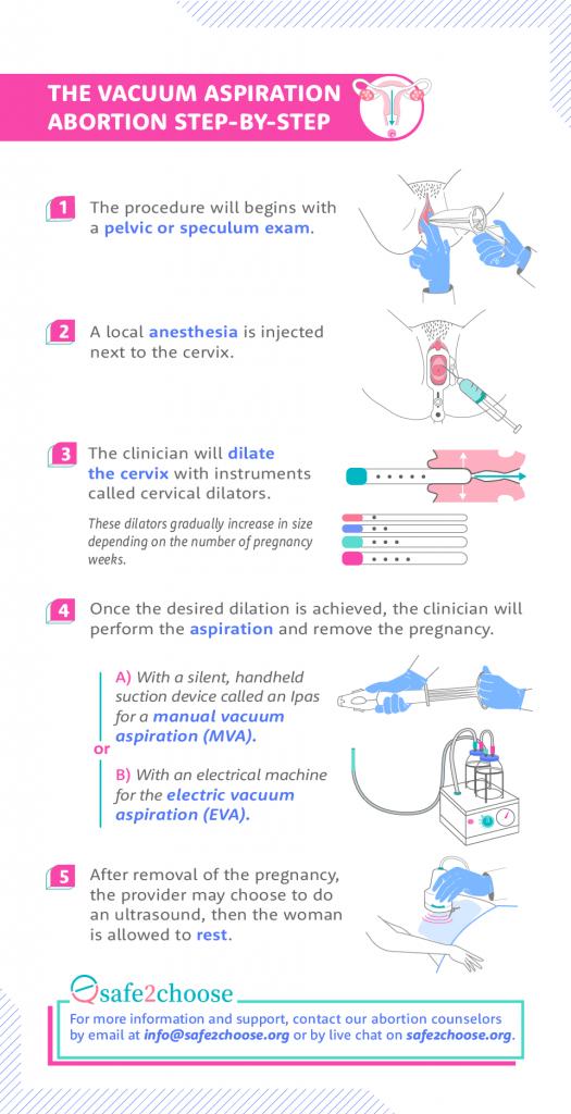 steps vacuum aspiration abortion