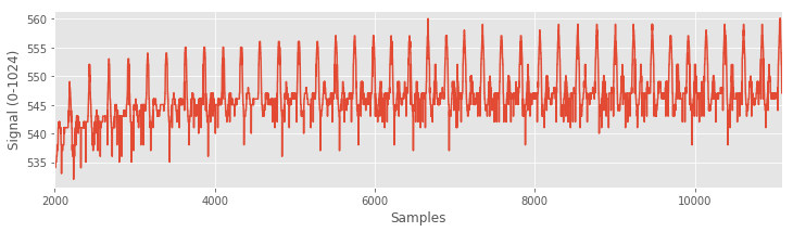 Pulse sensor data, zoomed on a subset of the data