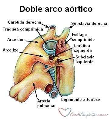 Doble-arco-aortico